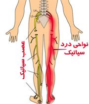 سیاتیک پای چپ