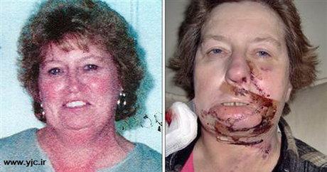 اتفاق عجیب در عملهای جراحی (+عکس)