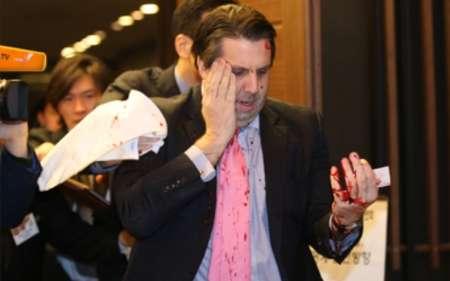 حمله به سفیر آمریکا با تیغ ریش تراشی (+عکس)