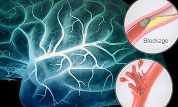 هر آنچه باید درباره سکته مغزی بدانیم