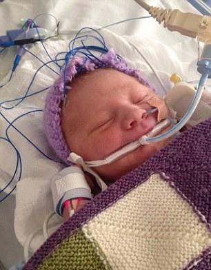 نوزاد پس از مرگ دوباره زنده شد(عکس)