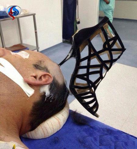 فرو کردن پاشنه کفش درون سر همسر توسط زن عربستانی
