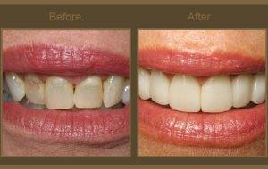 درباره لامینیت دندان چه می دانیم؟