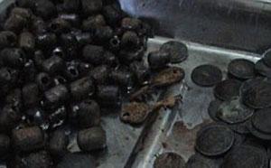 خارج کردن 431 سکه از معده مرد هندی! (عکس)