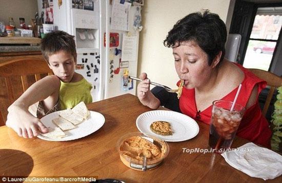مادر و پسری که دست ندارند (+عکس)