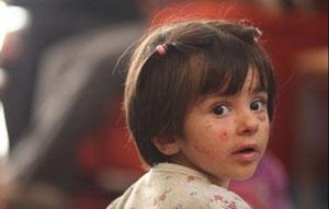 زجر کودکان پروانهای در سایه ازدواج فامیلی/ بیماری های عجیب در جنوب کرمان!