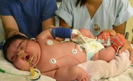 رکورد چاقترین نوزادان دنیا (+عکس)