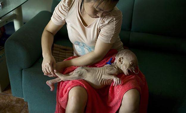 بیماری عجیب نوزاد چینی (+عکس)