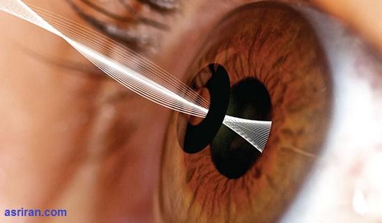 عینک مطالعهای که درون چشم کاشته میشود
