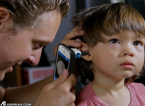 تشخیص عفونت گوش با گجت ویژه موبایل هوشمند