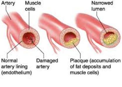درمان گرفتگی عروق با نانوذرات