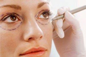 پف دور چشم؛ علل و درمان
