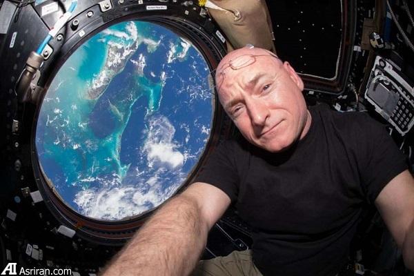 عوارض جانبی حضور بلند مدت در فضا بر بدن انسان