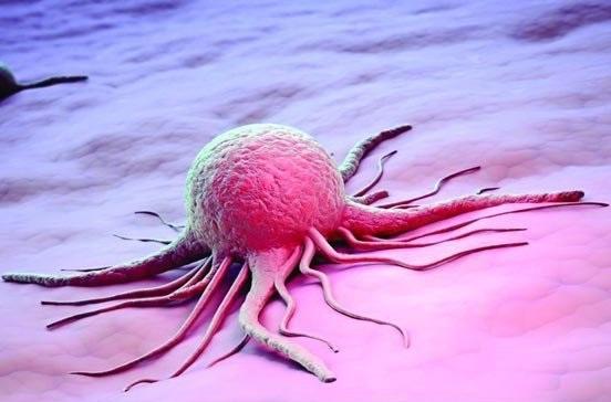 نتایج موفق مطالعات محققان ایرانی برای درمان سه نوع سرطان