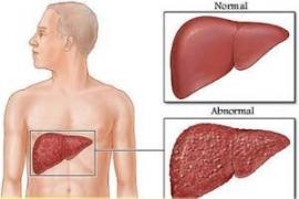 سرطان در کمین کبدچرب