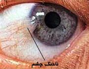 از «ناخنک چشم» چه میدانید؟