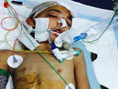 60 روز شکنجه دردناک نوجوان ۹ ساله در زابل!