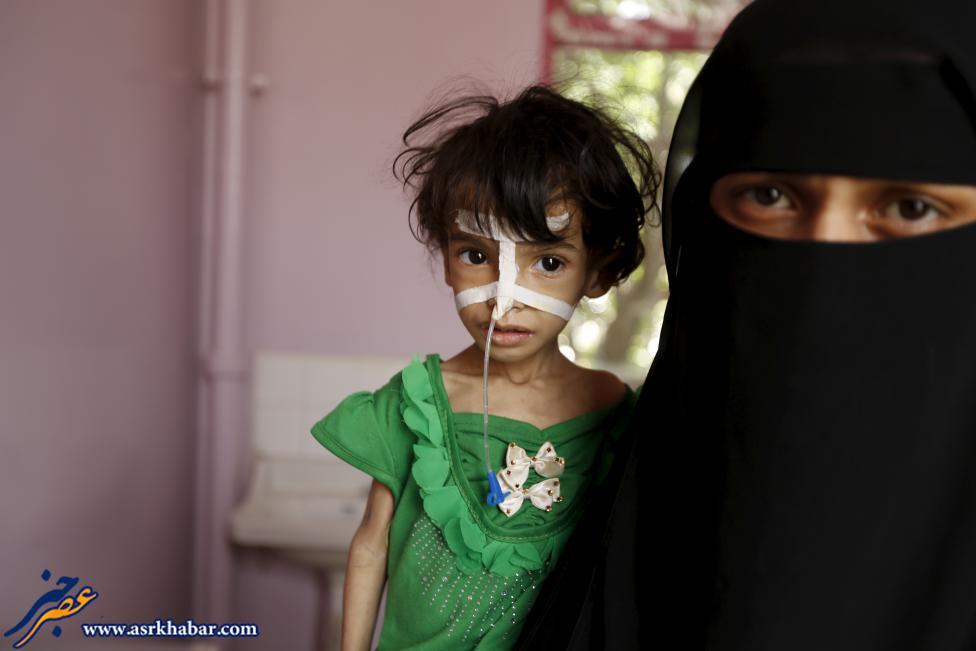 نتیجه تصویری برای کودکان یمنی گرسنگی