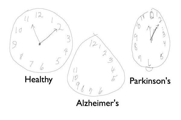 تشخیص آلزایمر و زوال عقل با قلم دیجیتالی