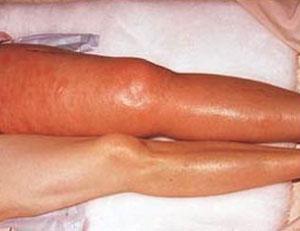 آمبولی ریه چیست؟