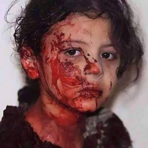 عربستان انتقام جمعه خونین را از کودکان می گیرد (عکس18+)