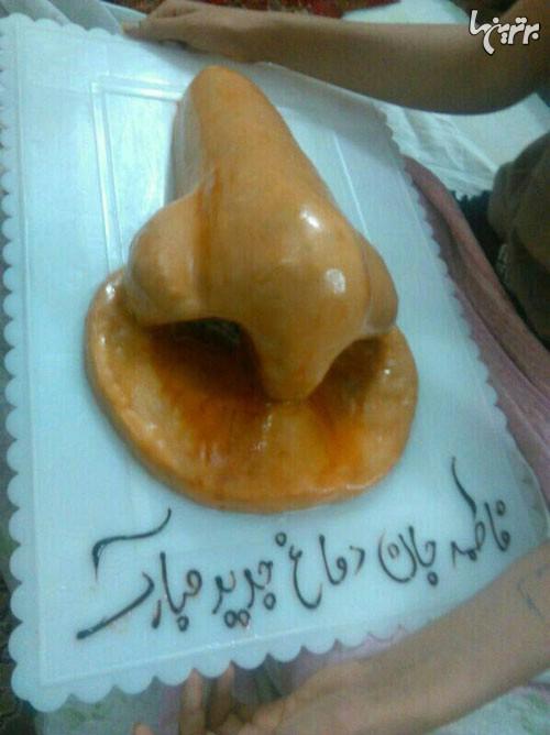کیک به مناسبت عمل دماغ! (عکس)