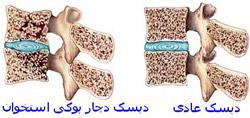 به استحکام استخوان ها کمک کنید