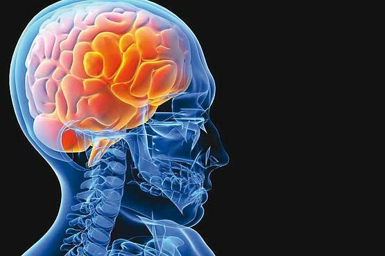 این چند علامت در سکته های مغزی را جدی بگیرید / زمان طلایی درمان فقط  3 تا 6 ساعت است