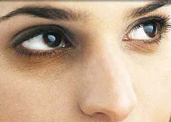 علل سیاهی دور چشمها