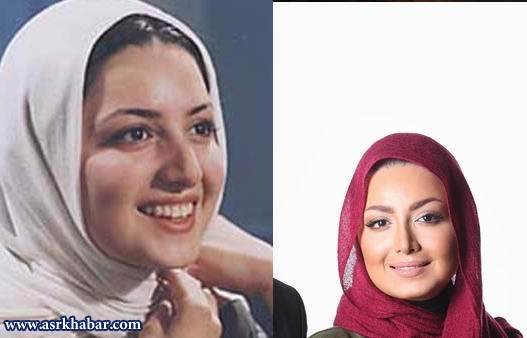 عمل زیبایی بازیگران ایرانی