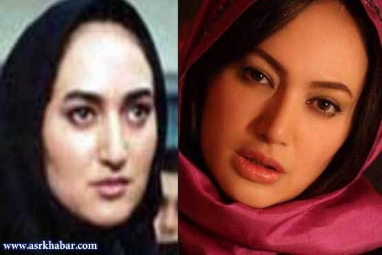 هانیه توسلی در  تفاوت چهره بازیگران زن ایرانی، قبل و بعد از عمل زیبایی (عکس)