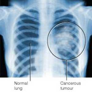 مجله سلامت مجله پزشکی متخصص آلرژی و ایمونولوژی درمان سینه پهلو درمان پنومونی