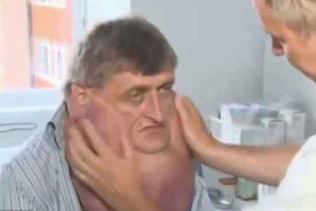مردی عجیب با گردنبندی از گوشت (+عکس)