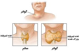 تیروئید را جدی بگیرید تا گرفتار عمل جراحی نشوید / علائم ها و نشانه های بیماری و روش های درمان