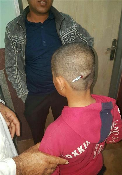 تنبیه وحشتناک دانش آموز توسط معلم در رودبار (+ عکس)