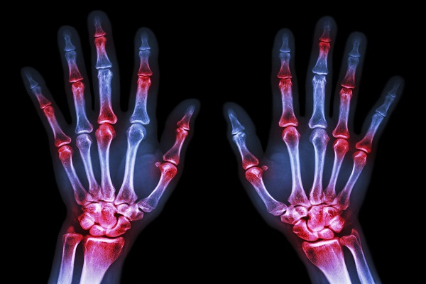 مواردی که باید درباره آرتریت رماتوئید بدانید