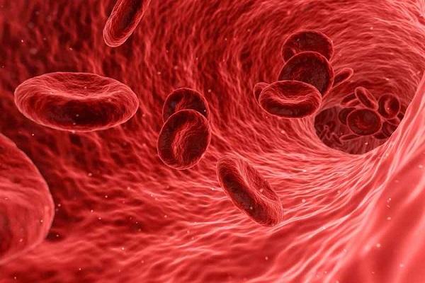 نشانههای کم خونی ناشی از کمبود آهن