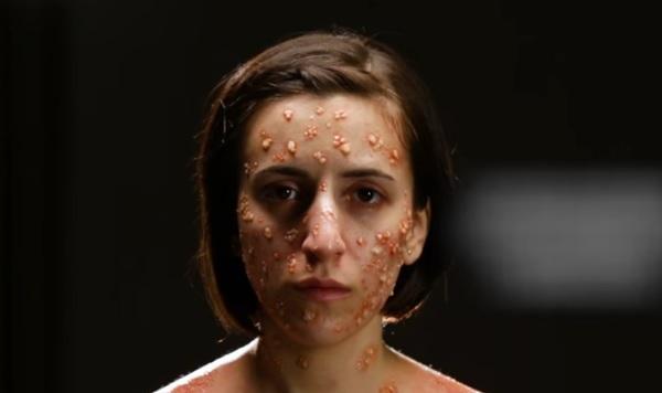 این 6 بیماری مرگبار در بدن چگونه به نظر می رسند
