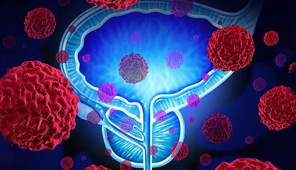 4 عامل که خطر ابتلا به سرطان پروستات را افزایش میدهند