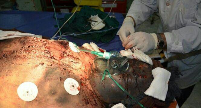 3 مصدوم در دومین انفجار مواد محترقه در اردبیل