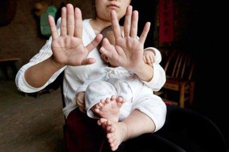 این کودک 31 انگشت دارد (+ عکس)