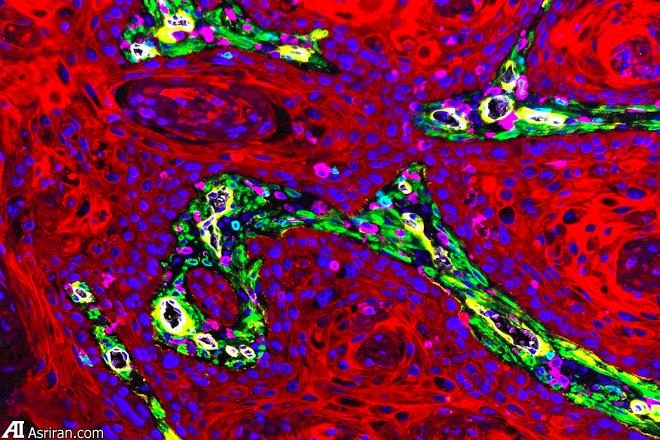 نگاهی با جزئیات زیاد به سلولهای سرطانی
