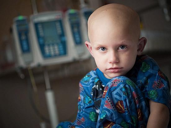 7 سرطان شایع در کودکان