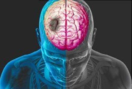 علایم سکته مغزی را جدی بگیرید