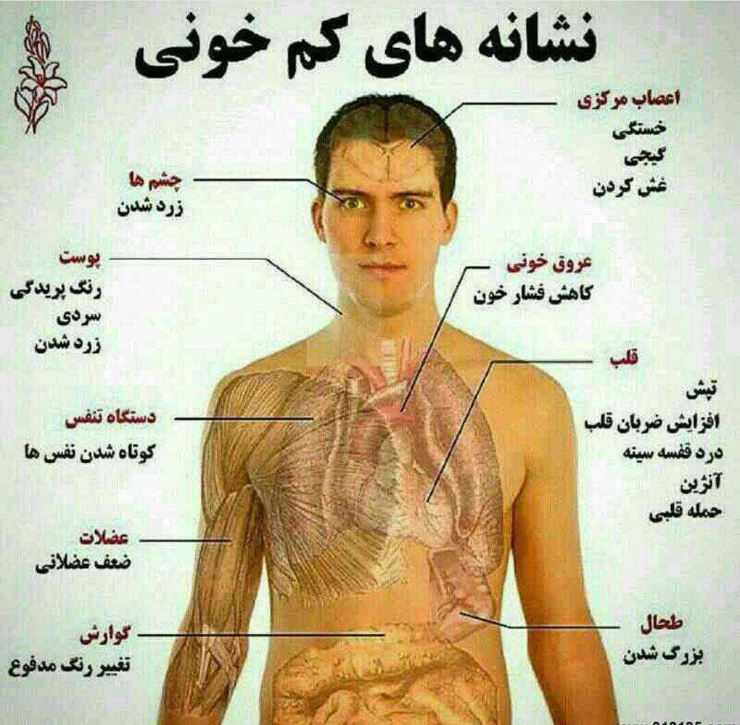 نشانه های کم خونی در یک نگاه (اینفوگرافیک)