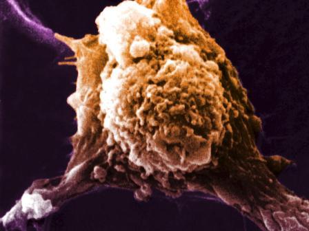 واکسن سرطان؛ یک گام تا واقعیت