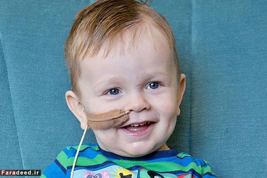 بیماری عجیب و نادر دو کودک! (+عکس)
