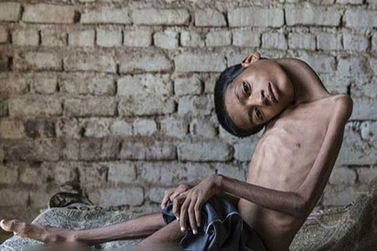 جراحی گردن 180 درجهای یک پسر هندی (+عکس)
