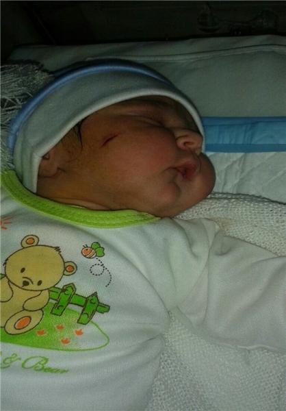 تکرار اشتباه پزشکی در زایمان و برخورد تیغ جراحی با صورت نوزاد (+عکس)