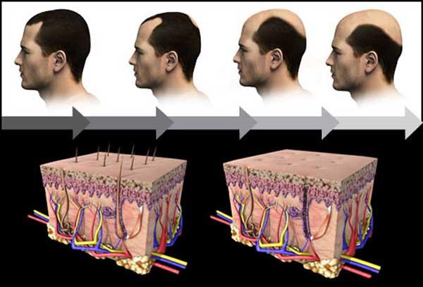 راه حل های درمان ریزش مو در مردان